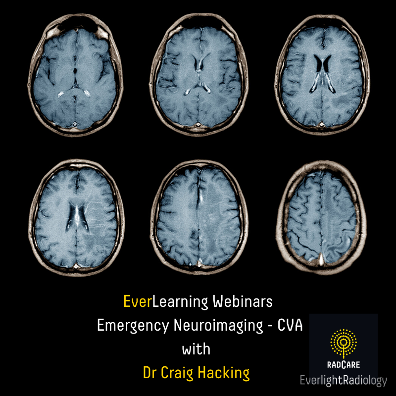 Everlearning - NeuroImaging (1)