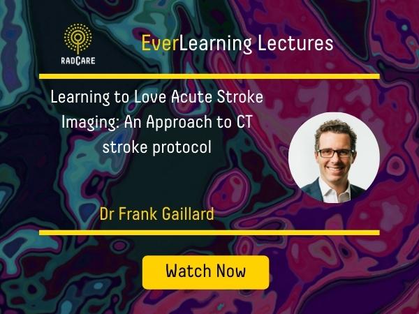 F Gaillard - CT Stroke Protocol 1
