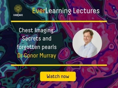 Website conor murray chest400x300 resources image